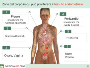 endometriosi_640x480