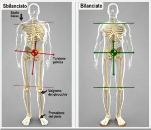sindrome-gamba-corta